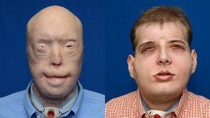 Pemadam Kebakaran Ini Berhasil Mendapat Transplantasi Wajah 3 Ngelag.com
