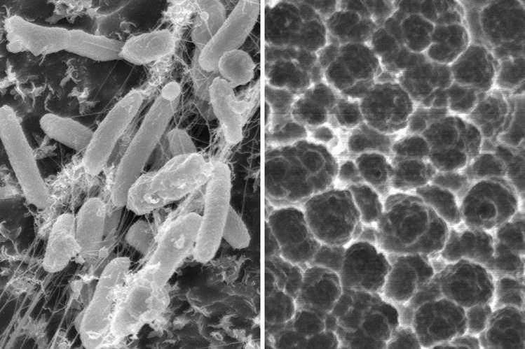 Ilmuan Temukan Bakteri Pengurai Sampah Plastik Bakteri Ideonella sakaiensis
